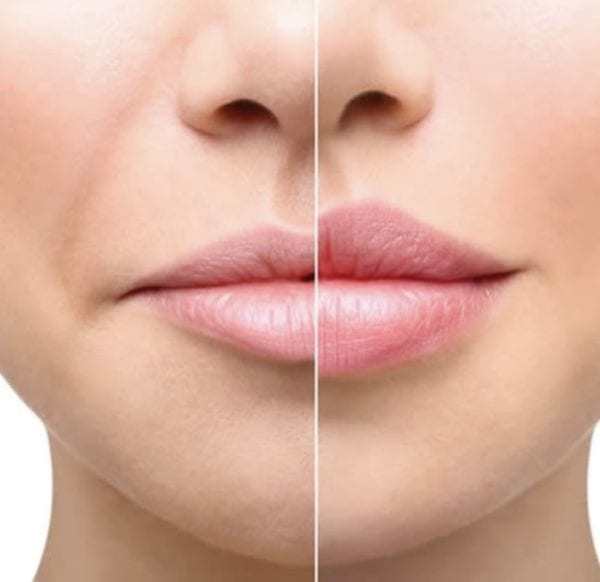 Hyaluron Pen Lips Before & After Las Vegas